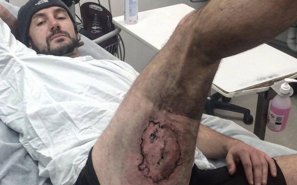 Muž popálený během exploze baterie v jeho iPhonu