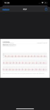 Export záznamu EKG - chytré hodinky