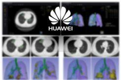 umělá inteligence Huawei koronavirus