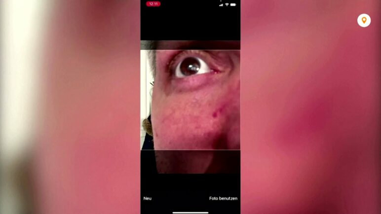 The eye-scan app that detects COVID-19