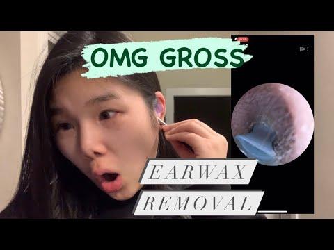 Bebird R1 review | watch me clean my ears